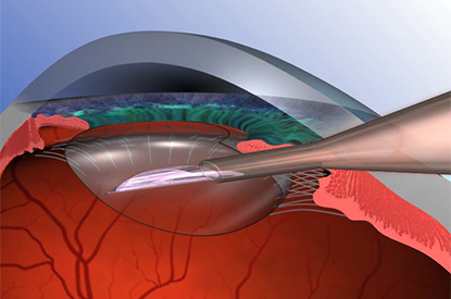 Inserting Artificial Lens