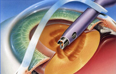 Removal Of Clouded Lens During Cataract Surgery