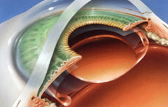New Lens Placement After Cataract Surgery